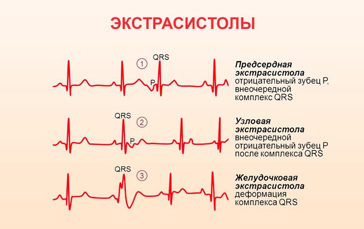 aritmiya serdca simptomy lechenie 9 - Troubles du rythme cardiaque