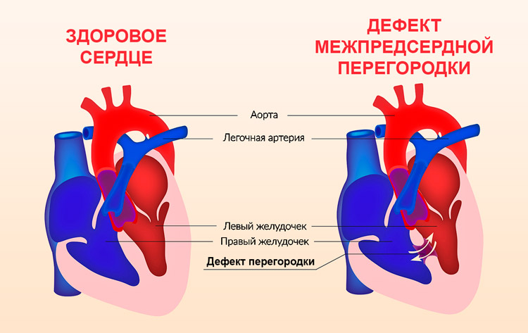 Патология сердца