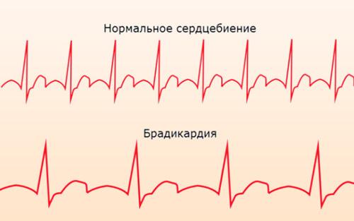 Развитие брадикардии на кардиограмме