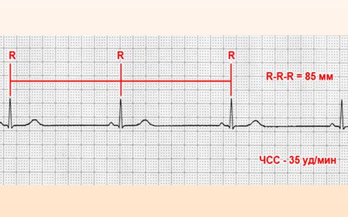 На кардиограмме брадикардия