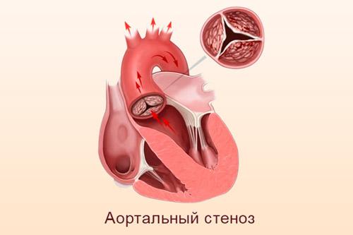 Стеноз аорты
