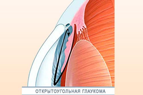 Вид глаукомы