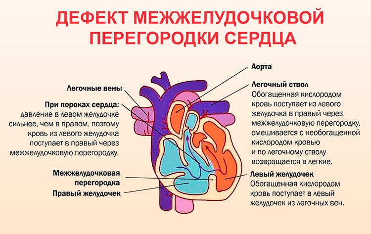 Отверстие в перегородке между желудочками