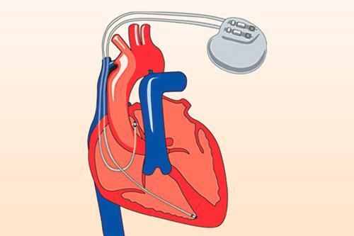 Кардиостимуляторы вживленный в сердце