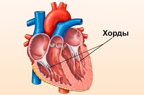 Дополнительная, ложная хорда левого желудочка сердца у ребенка ...