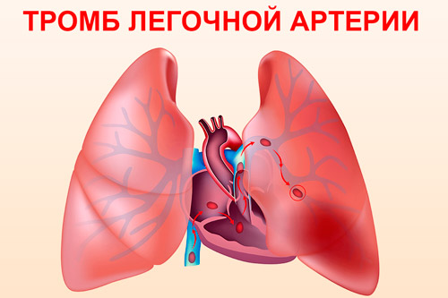 Закупорка тромбом легочной артерии