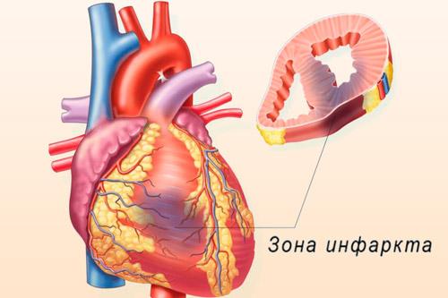 Зона инфаркта