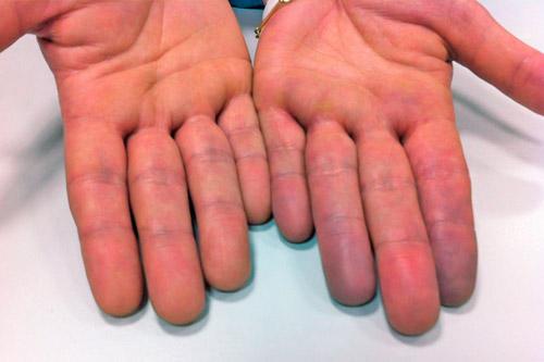 Посинение рук