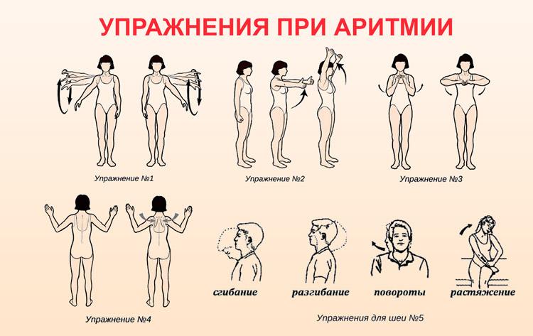 Гимнастика при аритмии