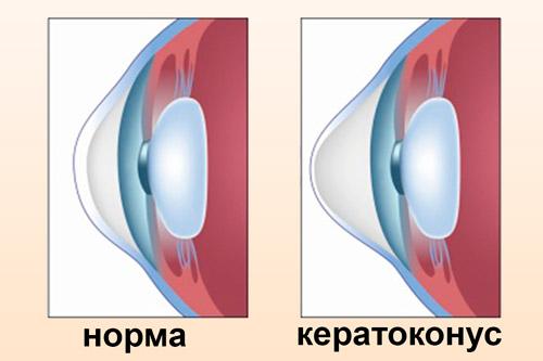 Глаз с кератоконусом