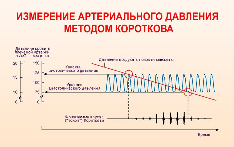 измерение артериального давления  методом Короткова