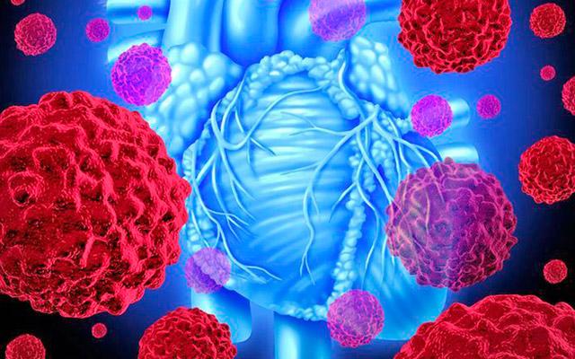 Симптомы и опасности миксомы сердца