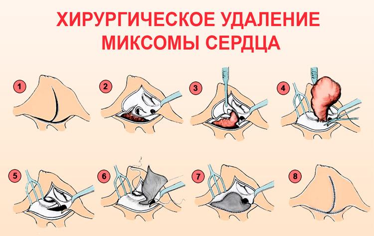 Хирургическое удаление миксомы