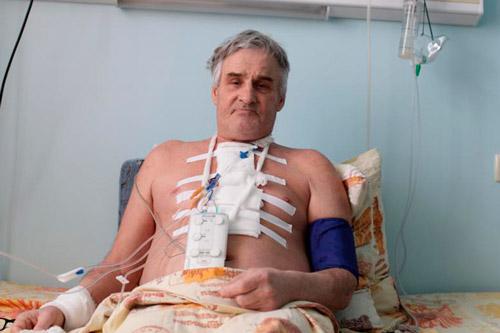 После проведения операции на сердце