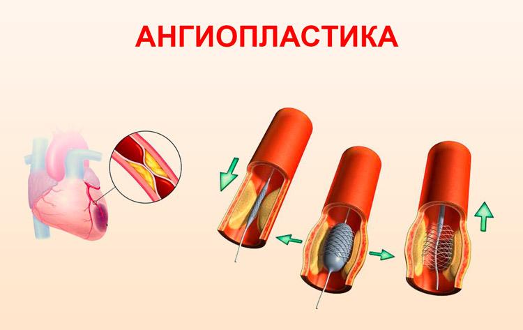 Проведение ангиопластики