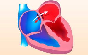 Причины овального окна в сердце