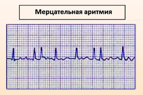 Пароксизмальная мерцательная аритмия