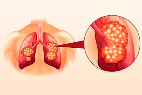 Раковая опухоль в легких