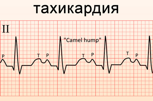 pervaya pomoshch pri tahikardii 1 - Heart palpitations, what to do Causes, medicines