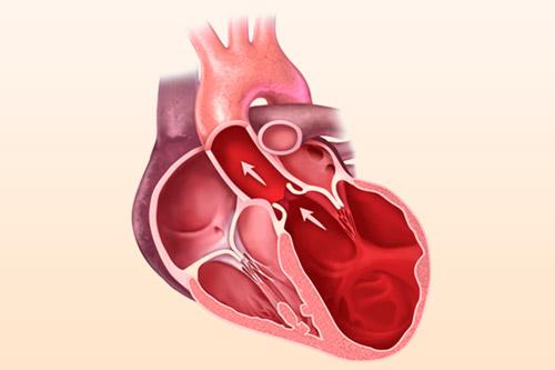 Тип кардиомиопатии