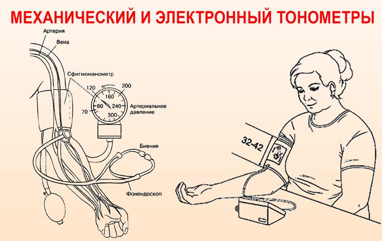 Механический и электронный тонометры