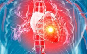 Симптомы рака сердца