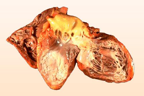 Ангиосаркома в сердце
