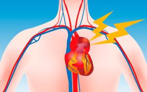 что нужно знать о расширении аорты
