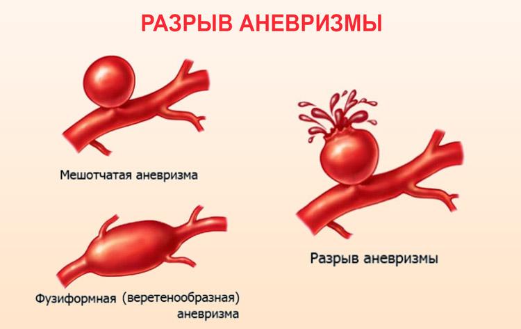 Разрыв расширенной аорты