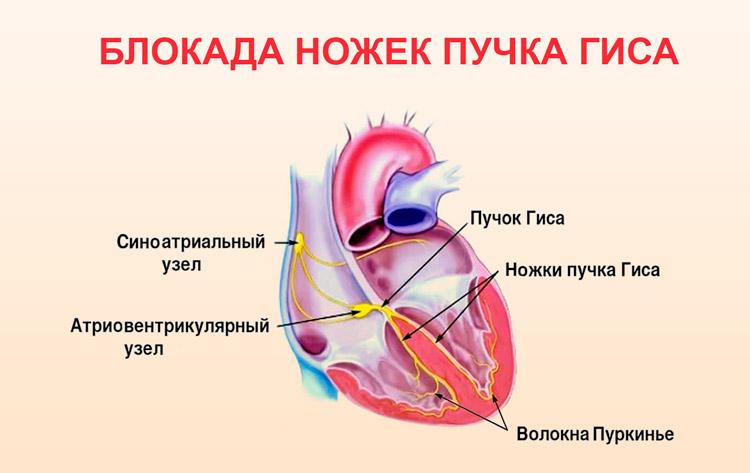 Сбой ритма сердца: причины, лечение, что делать, диагноз и краткая ...