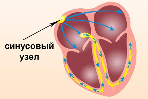 sinusovaya aritmiya u detej 1 - Aritmia sinus jantung sedang pada anak dari 4 hingga 8 tahun, gejala dan pengobatan