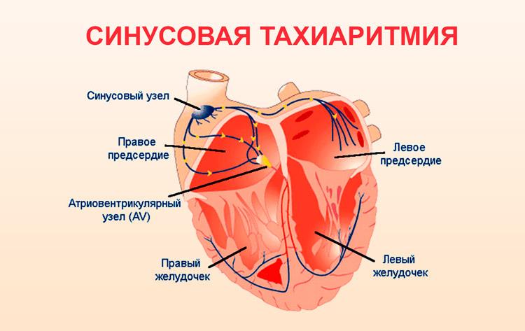 Синусовая тахиаритмия