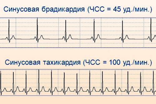 Синусовая аритмия на электрокардиограмме