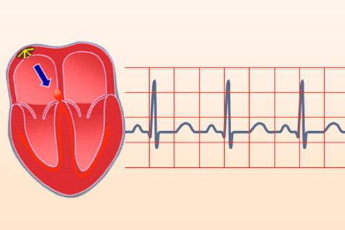 Возникновение синусовой тахикардии