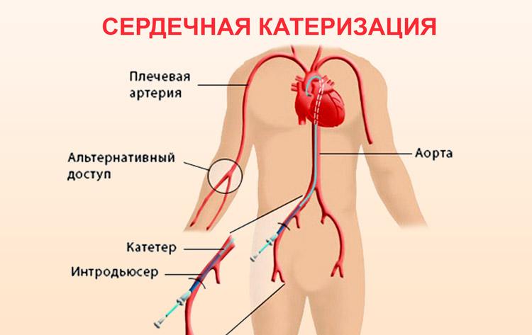 Систолический шум на верхушке сердца у ребенка и взрослого