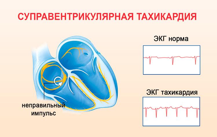 Суправентрикулярная форма тахикардии