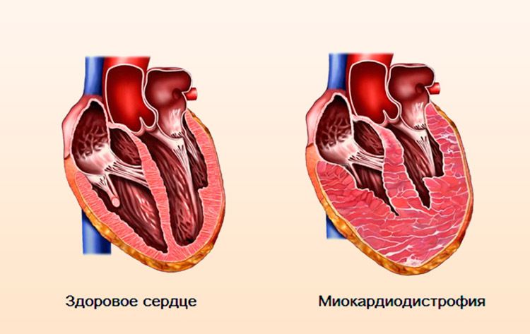 Нарушение работы сердечной мышцы