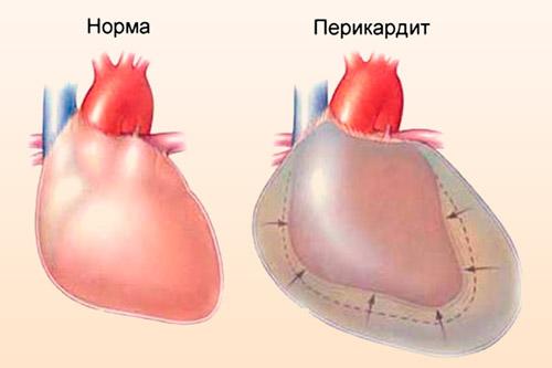 Сердце с перикардитом
