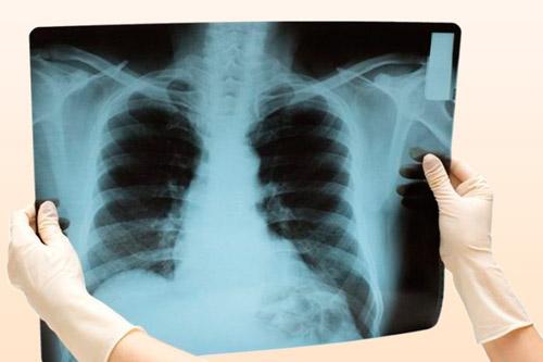 На рентгене отек легких