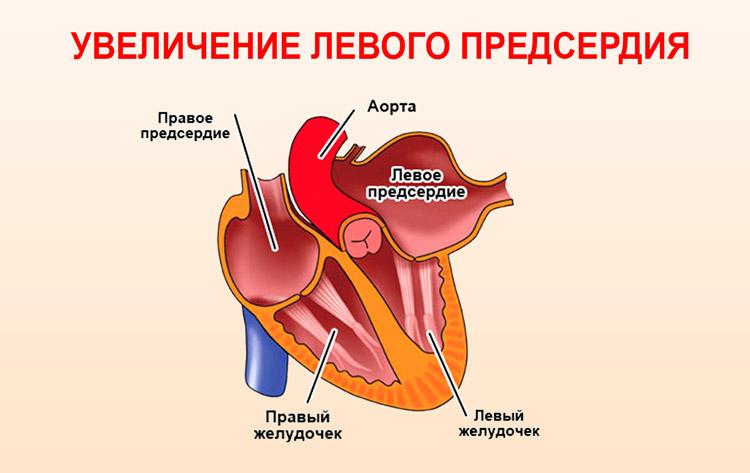 Гипертрофия левого предсердия