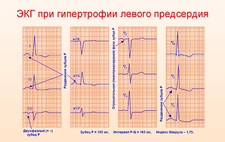 ЭКГ при гипертрофии левого предсердия