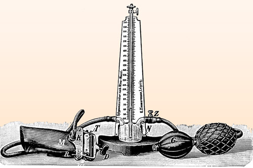 Изобретение С. Рива-Роччи