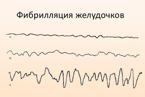 Фибрилляция желудочков на ЭКГ