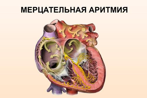 Сердце с мерцательной аритмией