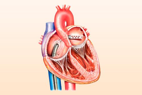 Эндоваскулярный катетер