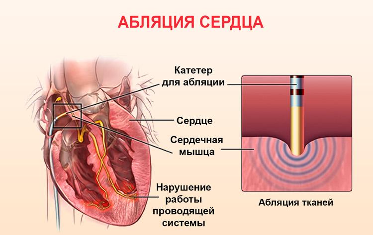 Операция прижигание на сердце при аритмии отзывы стоимость последствия и восстановление