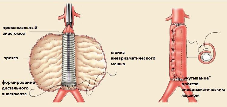 Протезирование аорты