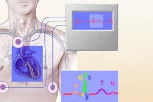Мониторинговая электрокардиограмма