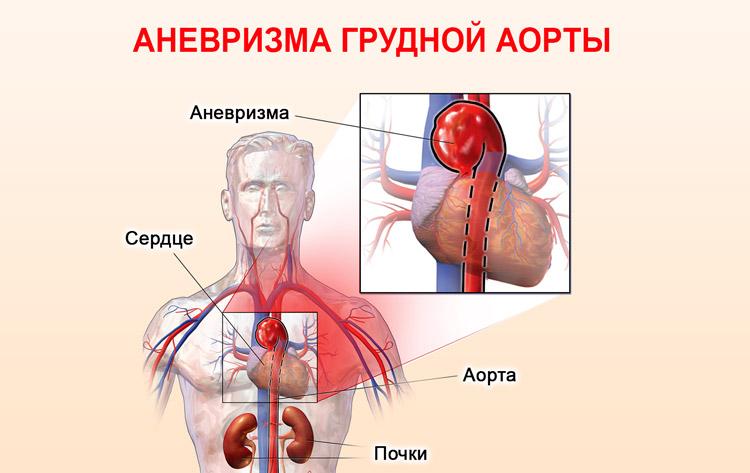 Аневризма грудной части аорты
