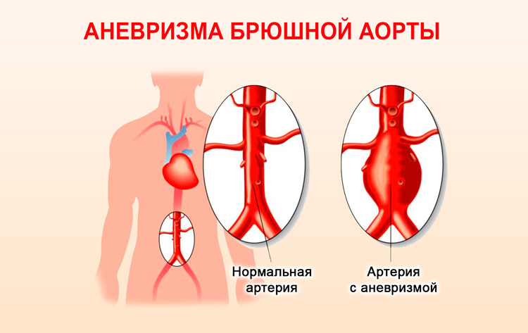 Аневризма брюшной части аорты
